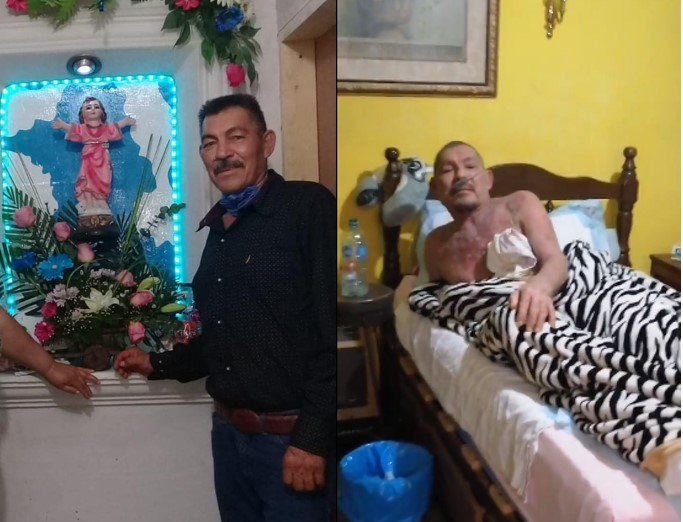 Jiménez Chih. Solicitan ayuda padece PÉNFIGO VULGAR necesita un tratamiento de 230 mil pesos, desde el pasado jueves esta sin tratamiento medico.